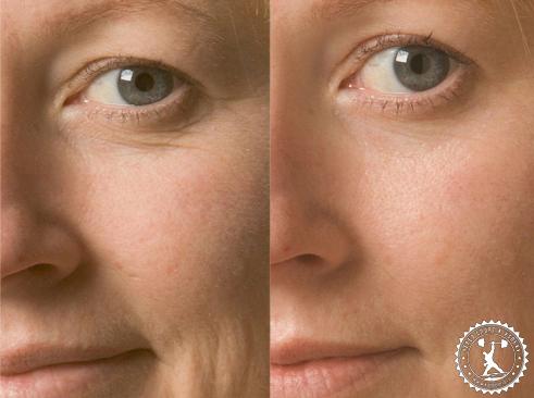 отзывы на эффективный крем от морщин вокруг глаз