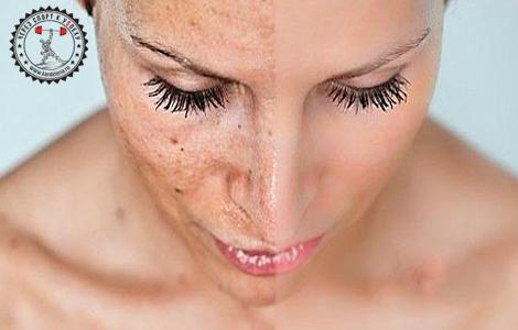 Эффективное средство от белых угрей на лице