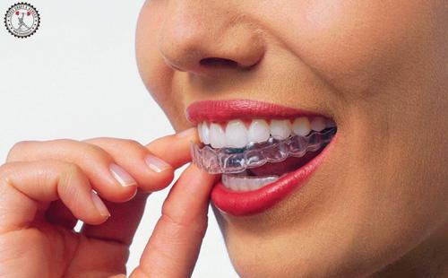 средство для отбеливания зубов в домашних условиях