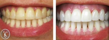 отзывы с фото до и после лазерного отбеливания зубов