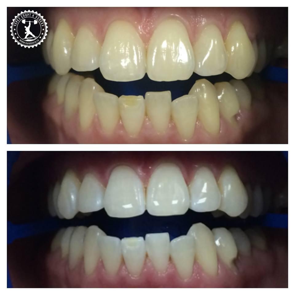 отбеливание зубоов – отзывы до и после этого с фото