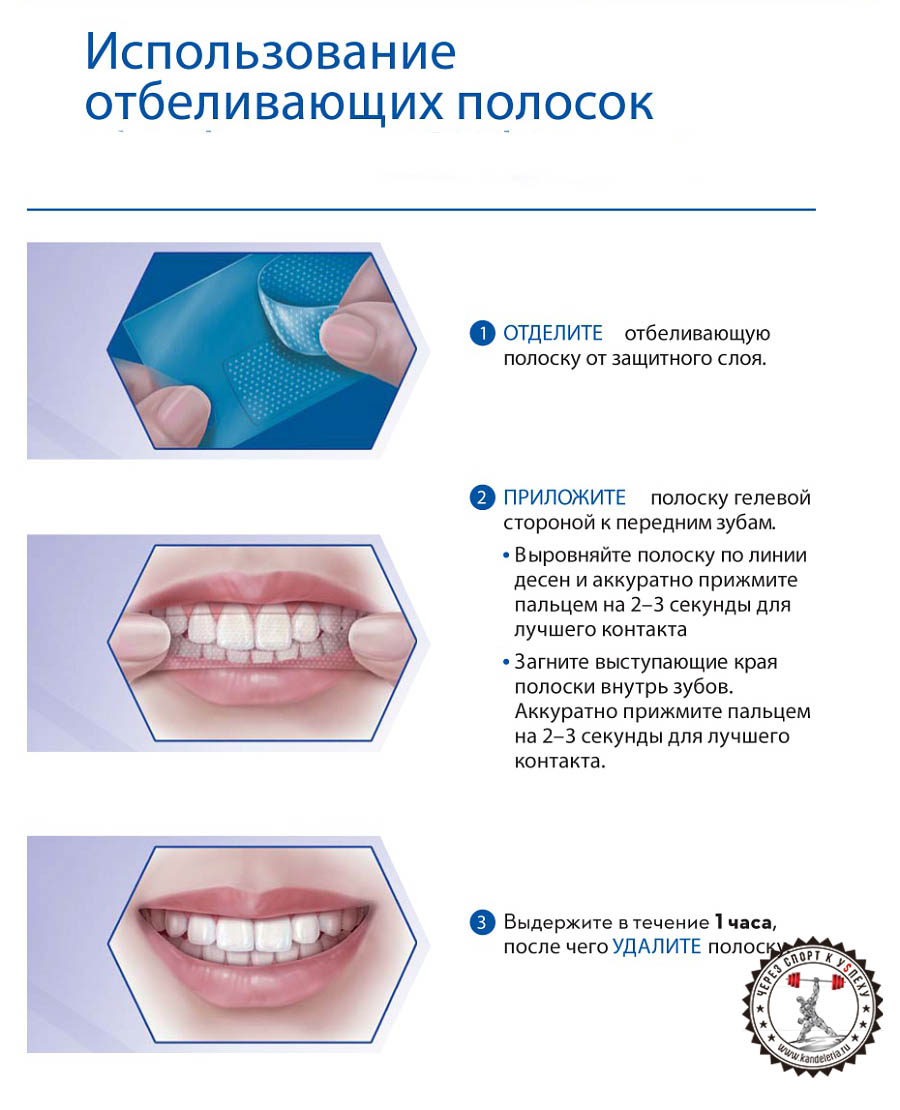 отбеливание зубов крест
