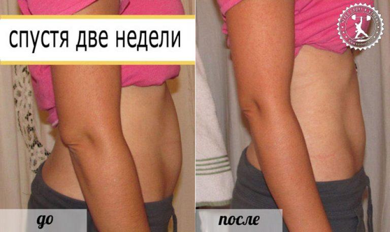Обертывание для похудения уксусное в домашних условиях