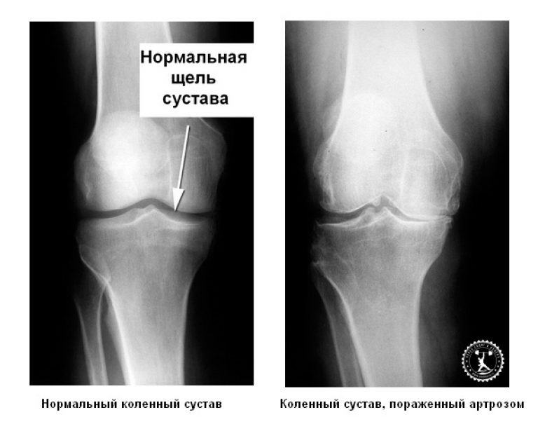 Рентгенография при артрозе