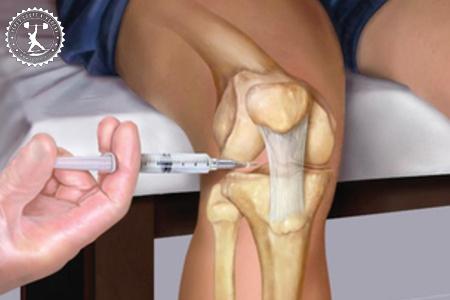 инъекции в коленный сустав при артрозе препараты