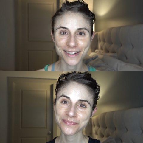 Фото до и после применения крема с мочевиной
